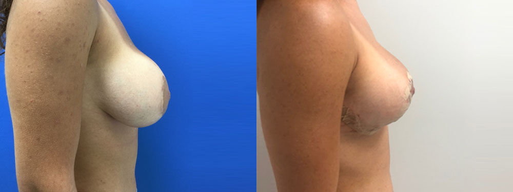 Breast Lift with Silicone Implants before and after