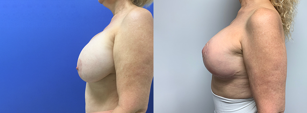 Breast Lift plus Silicone Implant before and after