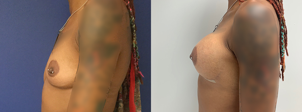 Breast Augmentation Silicone Implant before and after