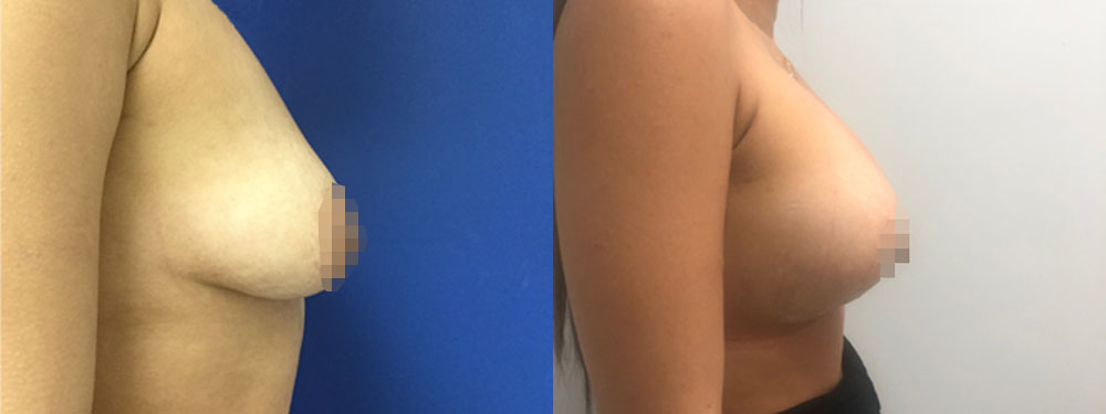 Breast Lift plus Silicone Implants before and after