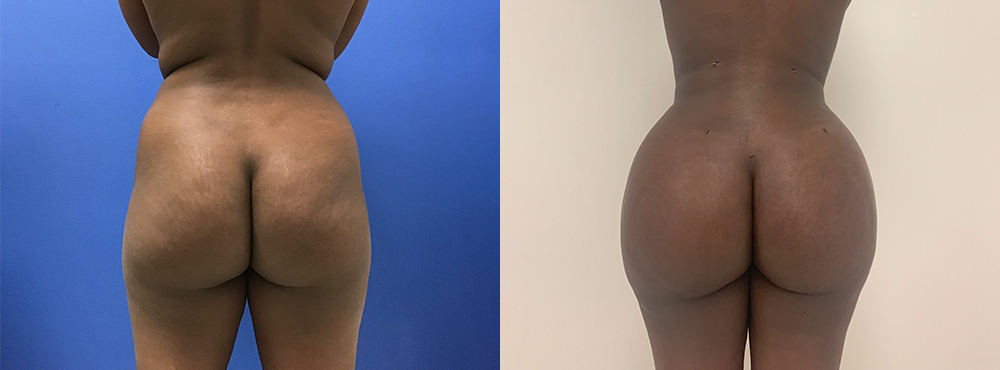 Brazilian Butt Lift before and after