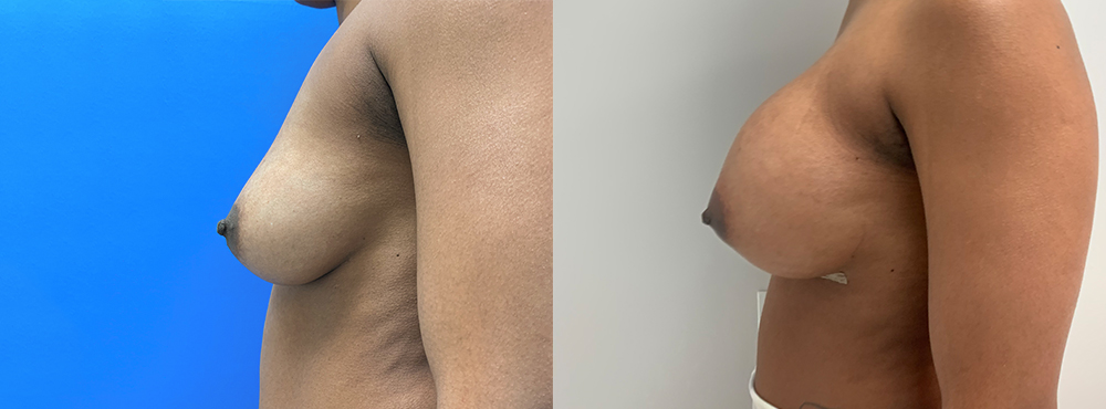 Breast Augmentation Silicone Implants before and after
