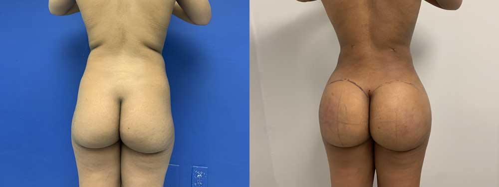 BBL surgery before and after