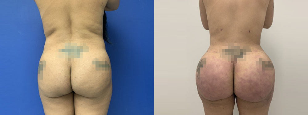 Brazilina Butt Lift before and after pictures