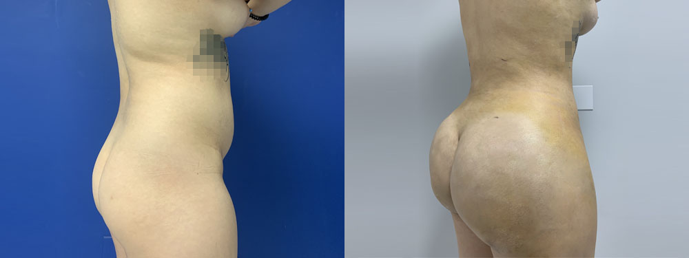 Buttocks Augmentation BBL before and after