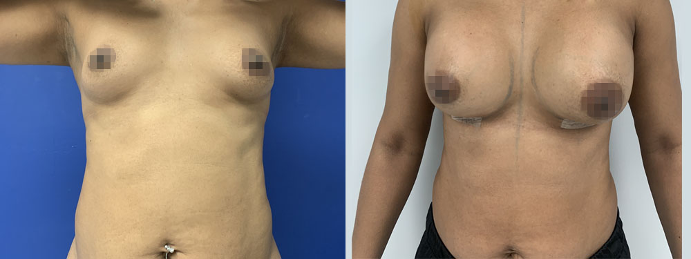 Breast Augmentation befoer and after