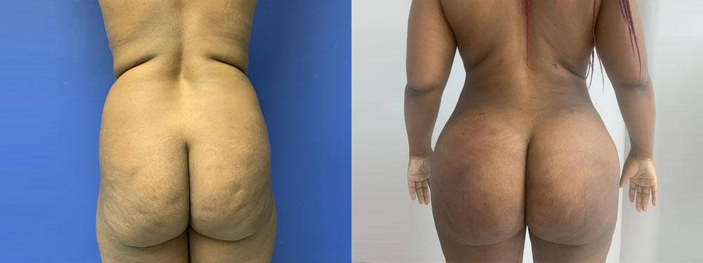 BBL fat transfer before and after