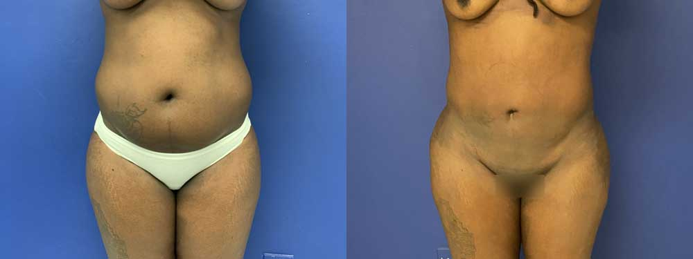 Buttock Augmentation with fat transfer before and after