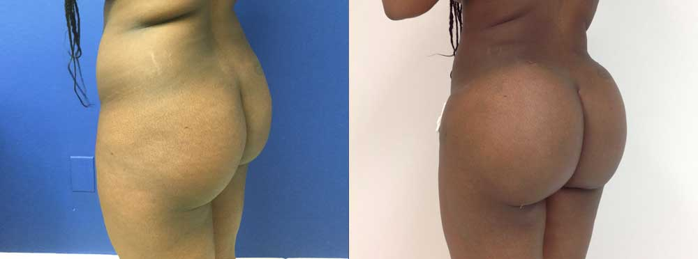 Brazilian Buut Lift before and after photos