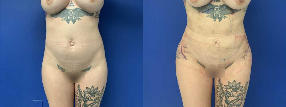 Fat transfer BBL before and after