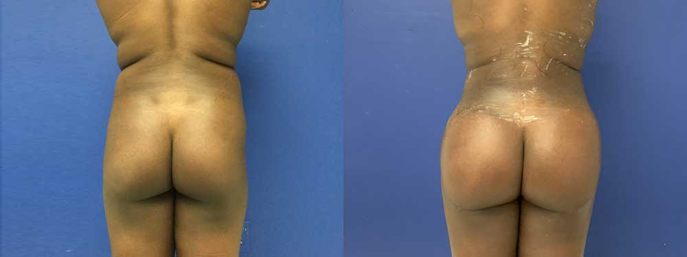 Fat transfer Buttoks Augmentation before and after