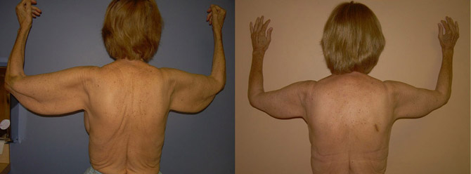 brachioplasty before and after